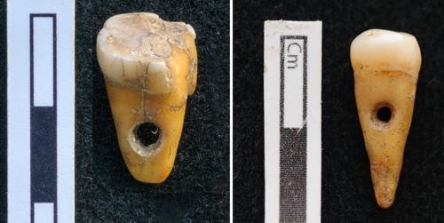 터키 선사 유적지서 8천500년 전 사람 이빨 장신구 출토.jpg